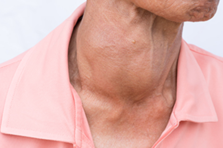 An increased thyroid gland (goiter)
